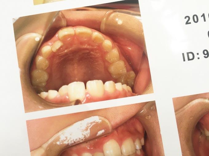 矯正歯科で撮った写真